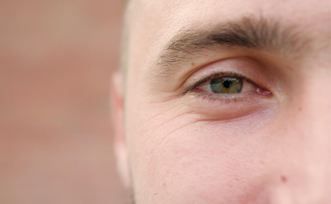 middle-aged man's eye